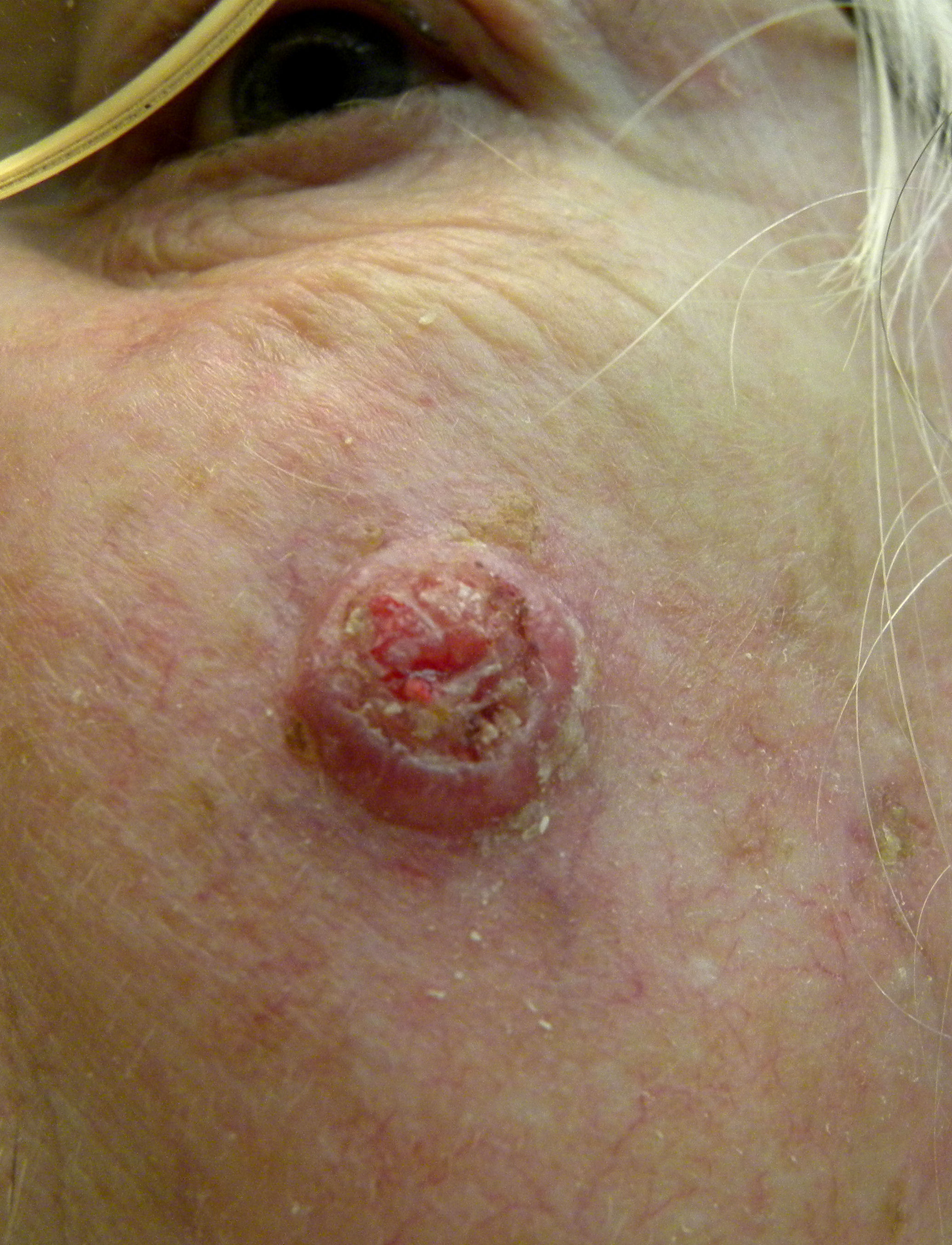 Basal Cell Carcinoma In Dogs Pictures