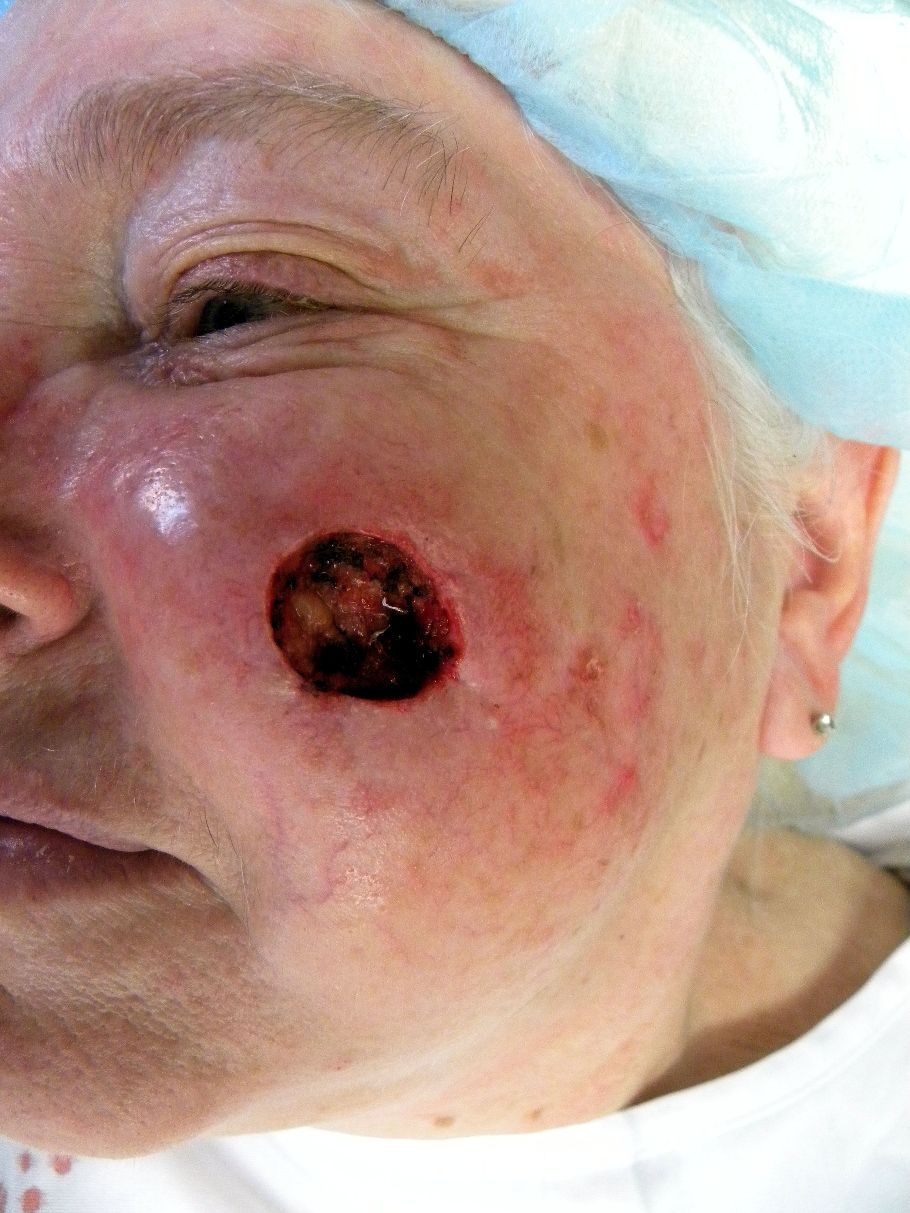 Squamous cell carcinoma — why I haven't planted my spring